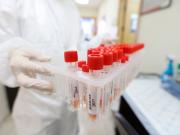 الصحة: تسجيل حالة وفاة و68 إصابة جديدة بفيروس كورونا