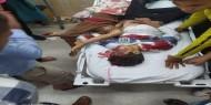المستشفيات المصرية في شمال سيناء تعلن جاهزيتها لاستقبال مصابي العداون الإسرائيلي في غزة