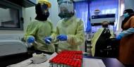 الصحة: لا وفيات و116 إصابة جديدة بفيروس كورونا و58 حالة تعافٍ